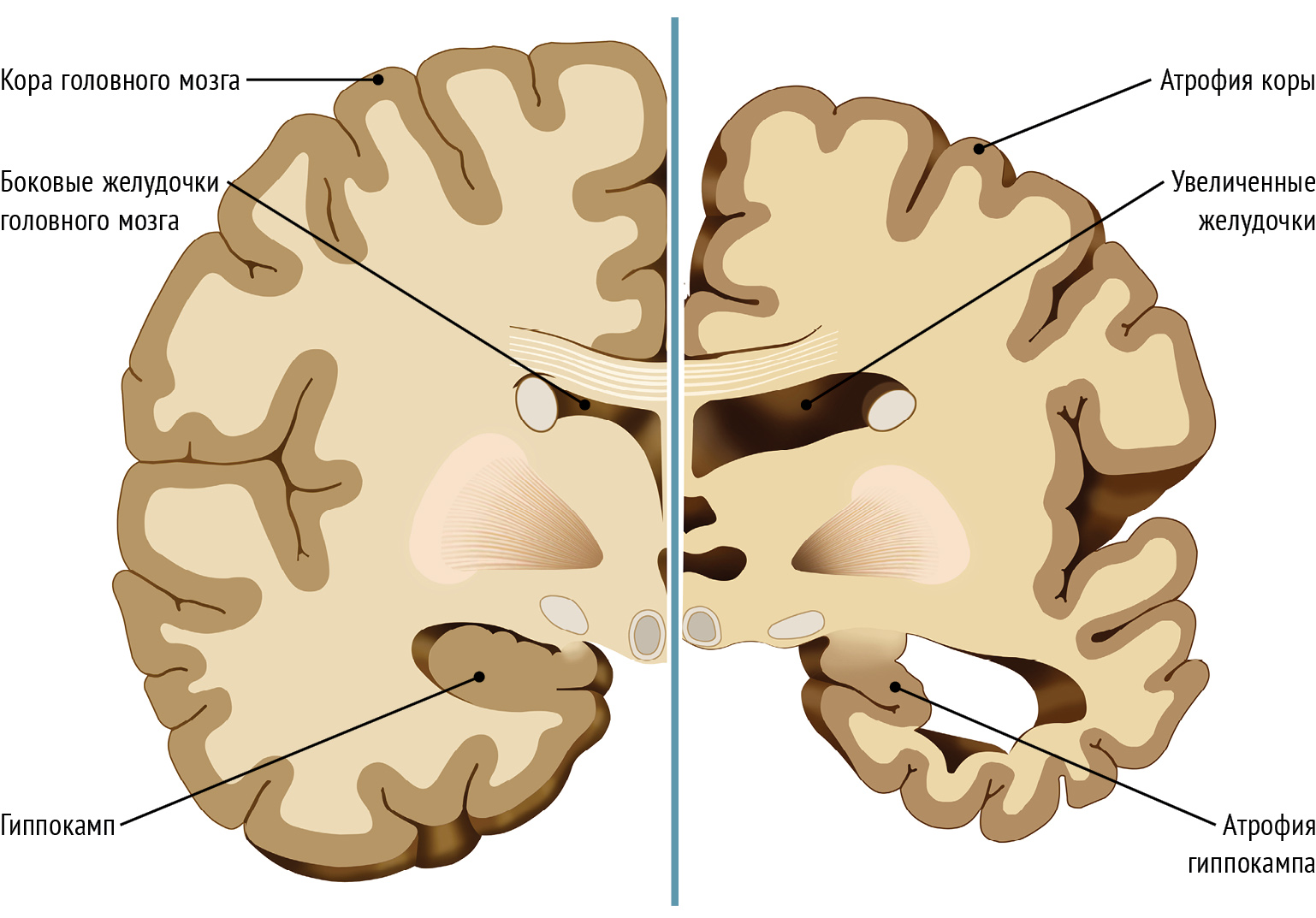 the causes and symptoms of alzheimers a degenerative brain illness Alzheimer's disease can cause a number of devastating effects if symptoms continue to progress without treatment since alzheimer's is a degenerative disease, symptoms are likely to worsen over time and possibly lead to the following outcomes.